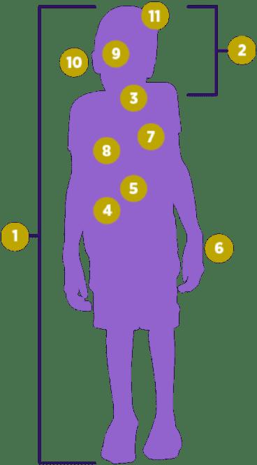Symptome MPS VII